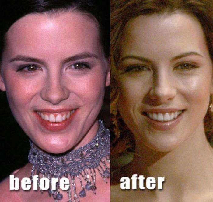 Після ринопластики (36 фото)